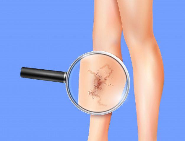 11. Spider veins on leg 2